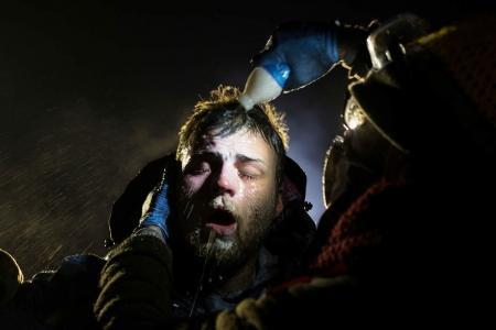 Primer premio de Historias en la categoría 'Temas Contemporáneos'. La imagen muestra a un hombre tras ser rociado con espray pimienta durante los enfrentamientos con la Policía en Dakota del Norte, EU.